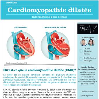 Cardiomyopathie dilatée