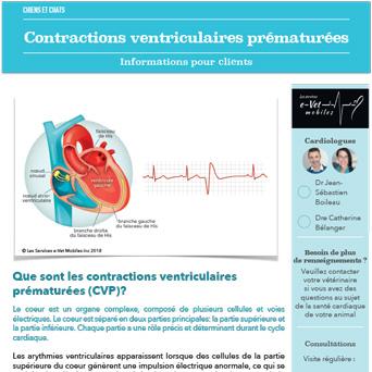 Contractions ventriculaires prématurées